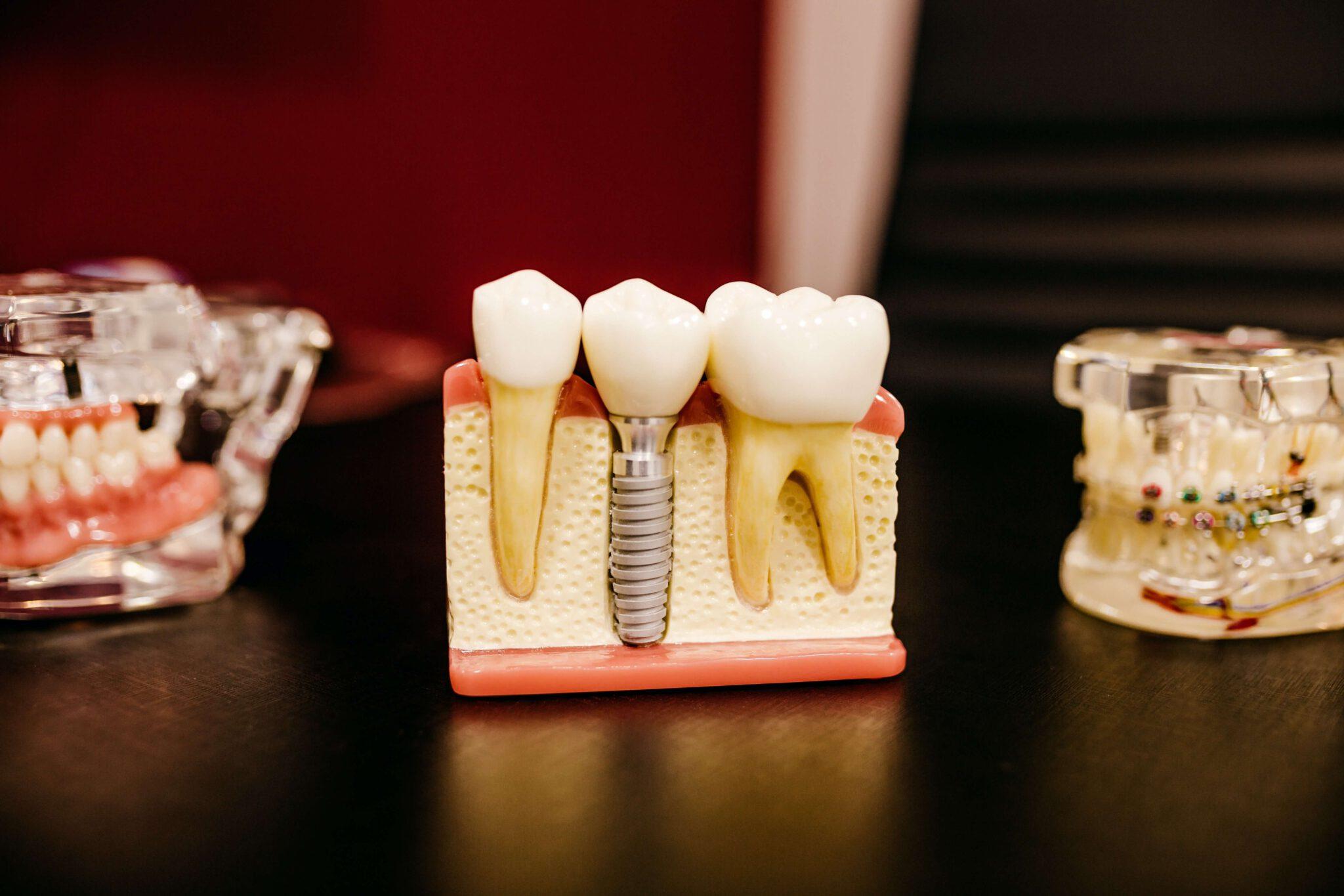 Ile kosztuje wstawienie zęba 1? – To trzeba wiedzieć!